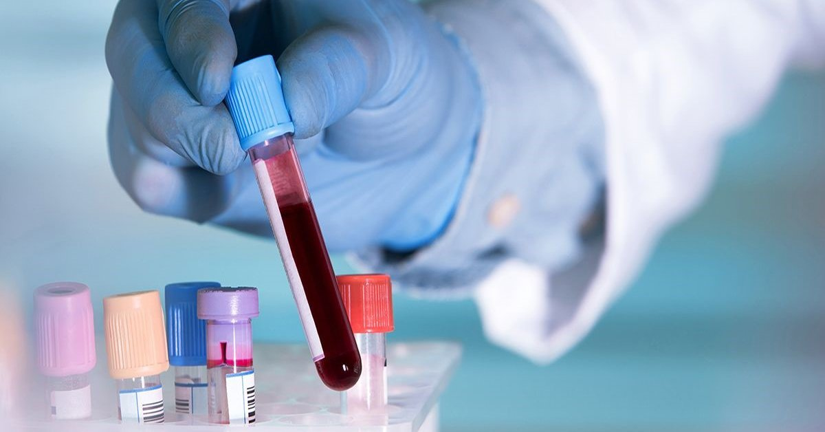 British scientists developed a novel diagnostic test against COVID-19 that gives the result in 10 minutes