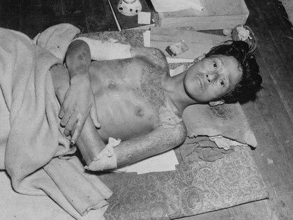 Los que sobrevivieron tenían la piel quemada, la boca convertida en una herida supurante, los miembros destruidos (REUTERS)