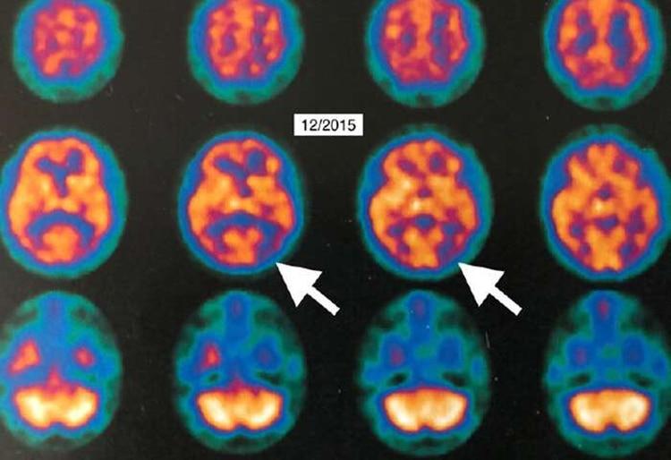 En 1906, el psiquiatra y neuropatólogo alemán doctor Alois Alzheimer describió a una paciente con pérdida progresiva de la memoria (HBOT Alzheimer Louisiana State Univ)