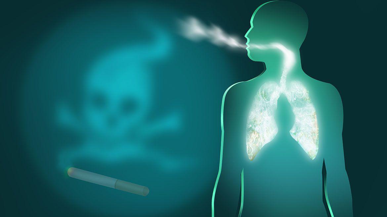 El humo del cigarrillo (CS) es la causa más importante de enfermedad pulmonar crónica, incluida la bronquitis crónica y el enfisema, además de causar cáncer de pulmón (Shutterstock)