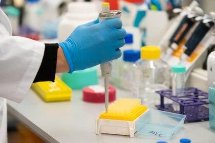 Laboratorio Universidad San Martin - Inmunova - Suero Anticuerpos COVID 19 - Coronavirus (Foto: Franco Fafasuli)