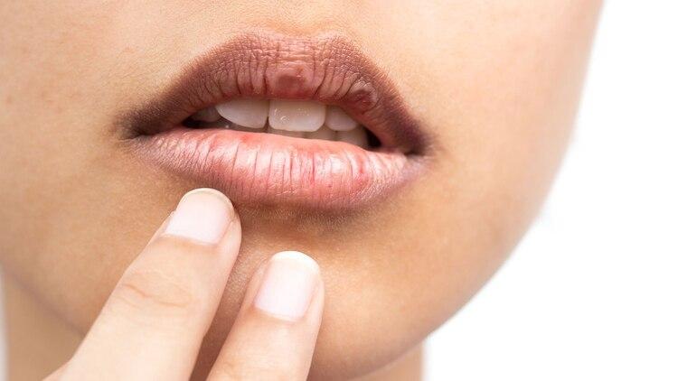 Entre los consejos que dan los especialistas para que no se resequen es consumir vitamina B2, B6 o B12 (Shutterstock)
