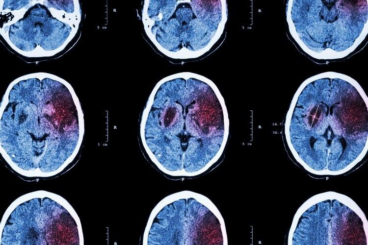 Actuar sobre los factores de riesgo vascular es una de las maneras más eficaces de prevenir un ACV (Shutterstock)