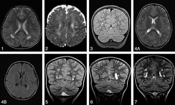 Varias tomografías de cráneos de pacientes con síndrome de Bannayan-Riley-Ruvalcaba
