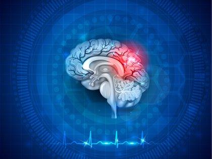 Entre las secuelas más comunes del ACV se encuentran las que comprometen distintos dominios neurológicos afectando la motricidad, la sensibilidad, el habla, el lenguaje, la deglución, la vista, las funciones cognitivas y el ánimo, entre otras