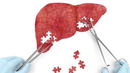 En la mayoría de los casos esta enfermedad es provocada por un virus de hepatitis A, B, C, D y E (Getty)