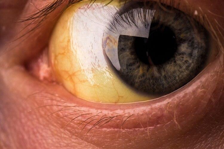 La ictericia o coloración amarillenta de la piel y de la esclerótica de los ojos es típica de la hepatitis, acompañada por orina oscura, heces claras y un ligero aumento del tamaño del hígado (Shutterstock)