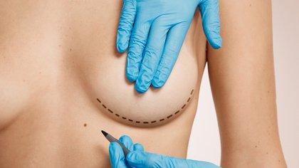 La cirugía de aumento mamario es una de las más pedidas por las mujeres en la Argentina(Shutterstock)