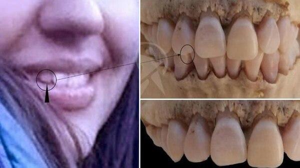 Se prestó especial atención a uno de los dientes incisivos laterales de María Cash y del cráneo en Bolivia
