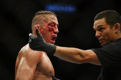 Niko Price terminó con un impactante corte en el ojo