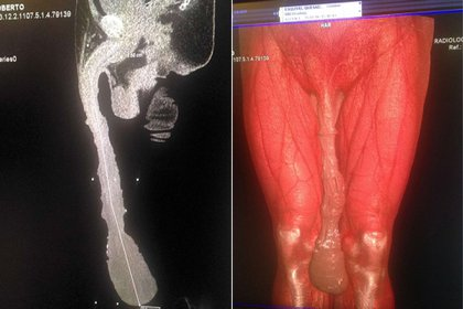 El de Cabrera es un caso clínico único. Los médicos le recomendaron operarse para reducir el tamaño de su pene y tener una vida sexual normal. Él se negó (Facebook)