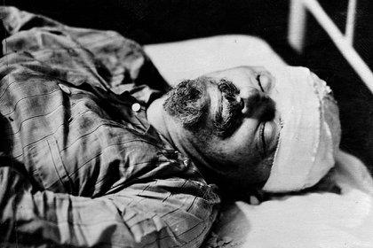 León Trotski después de morir a causa de las heridas infligidas por el agente del NKVD Ramón Mercader. Ciudad de México, 21 de agosto de 1940. (AP)