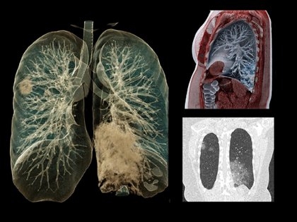 Una tomografía computada muestra los efectos del coronavirus en los pulmones de un paciente en Bélgica - REUTERS