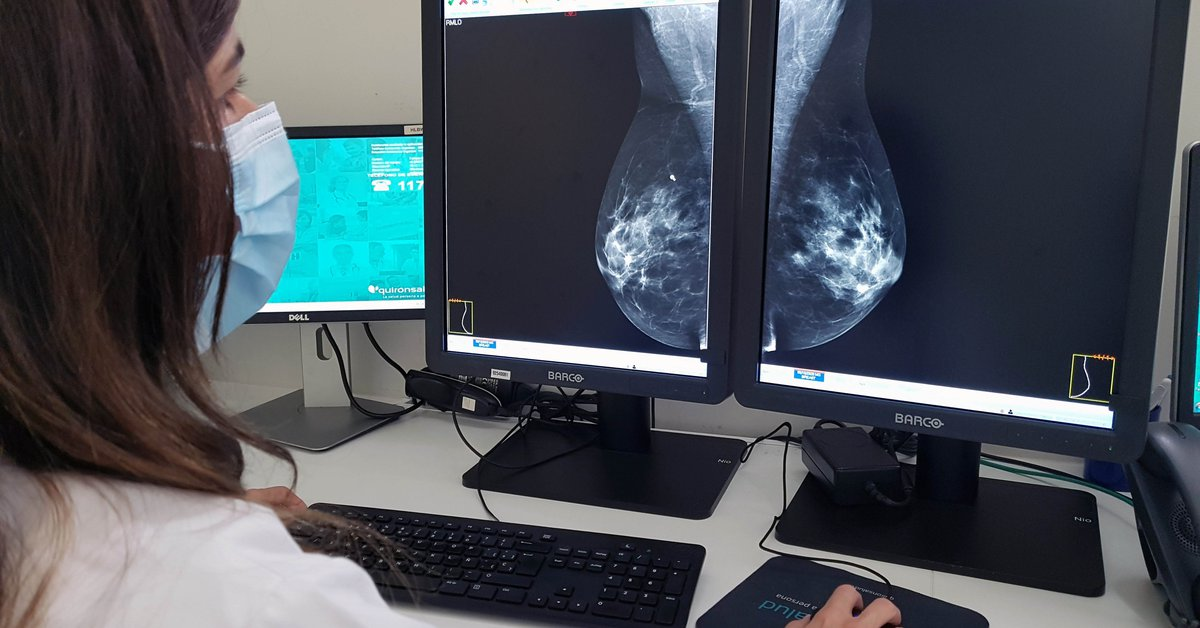 Health.-They make a new discovery in the treatment of breast cancer on the role of androgens