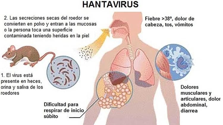 Los síntomas se asemejan a un estado gripal: fiebre; decaimiento; dolores musculares; escalofríos; dolores de cabeza; náuseas; vómitos; diarrea y en algunos casos, dolores abdominales o en la parte baja de la columna
