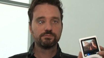 Rob Spence es cineasta y desde hace 10 años tiene una prótesis ocular con una micro cámara capaz de enviar las imágenes que capta a un receptor.