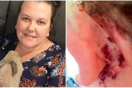Jasmine de 37 años se dio cuenta años tuvo una infección grave que se gestó por cinco años y desarrolló una bacteria que carcomió su oído e iba directo a su cerebro cuando fue identificada y atacada Foto: Especial