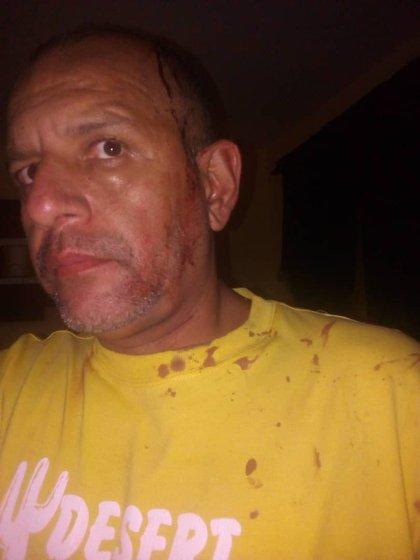 El padre de la víctima resultó herido en medio de la detención