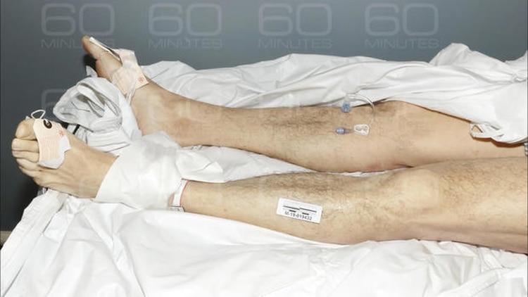 Para el forense Baden, Epstein fue asesinado. En el expediente falta una foto fundamental: cómo se encontró al cuerpo esa mañana, una imagen clave para determinar si pudo haberse ahorcado (Gentileza 60 Minutos)