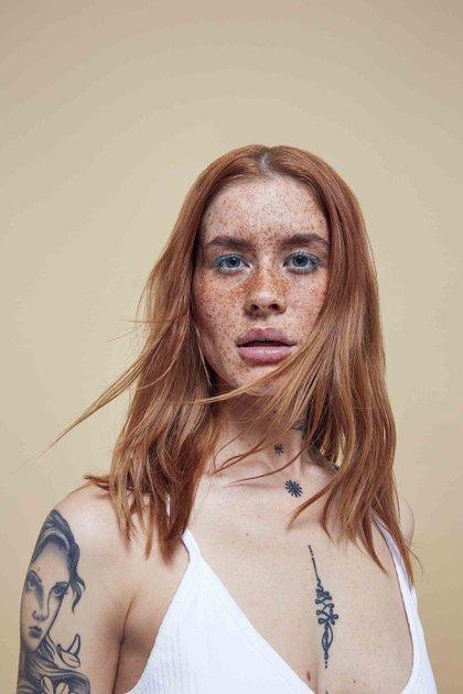Polly Ellens es una modelo que tiene pecas en su rostro (Missguided)