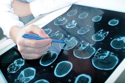 A pesar de los síntomas compartidos, la demencia con cuerpos de Lewy tiene síntomas clave que se diferencian de otros trastornos similares (Shutterstock)