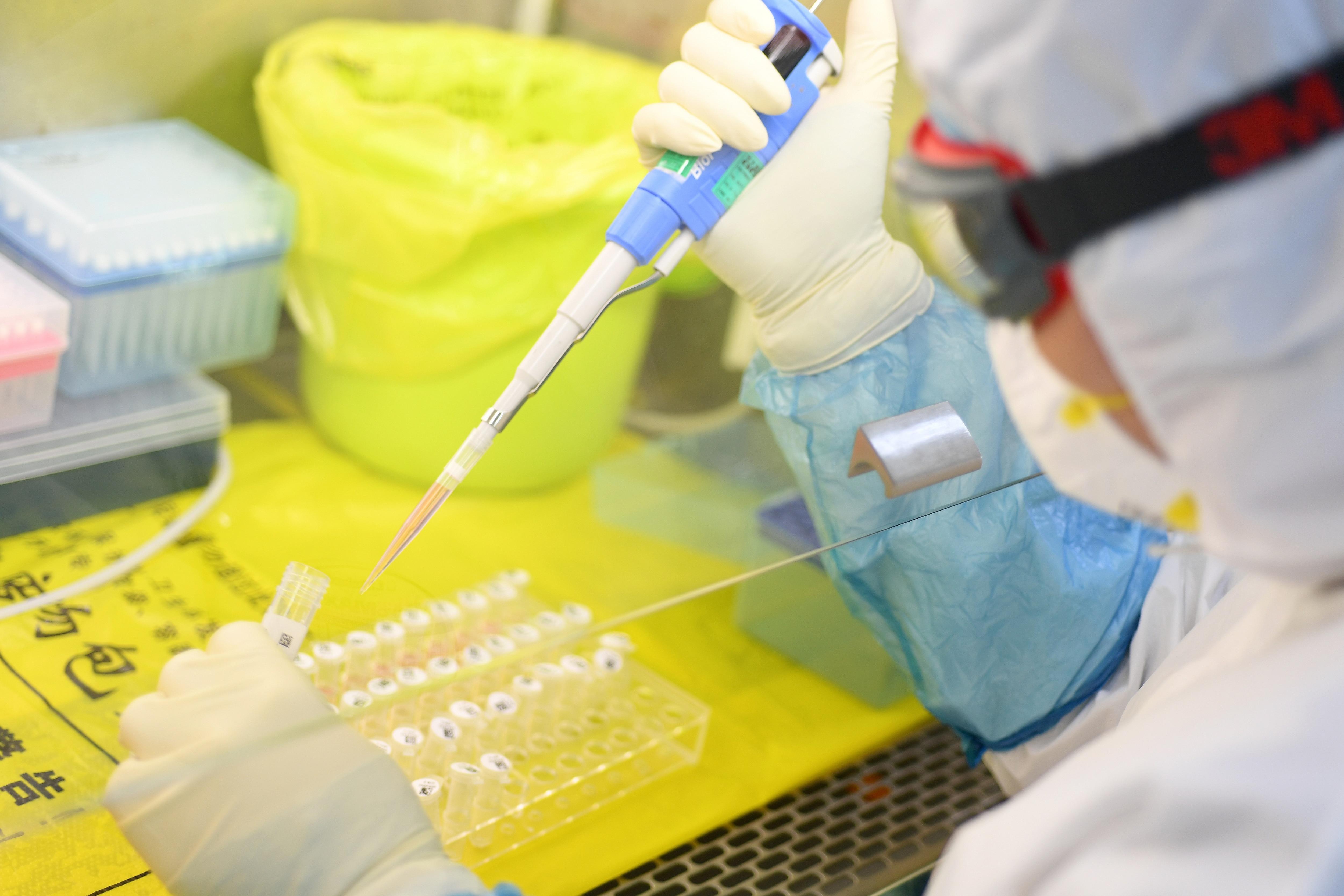 Actriz Porno Qu Studio Bioquimica un documental sobre el origen del coronavirus asegura que el