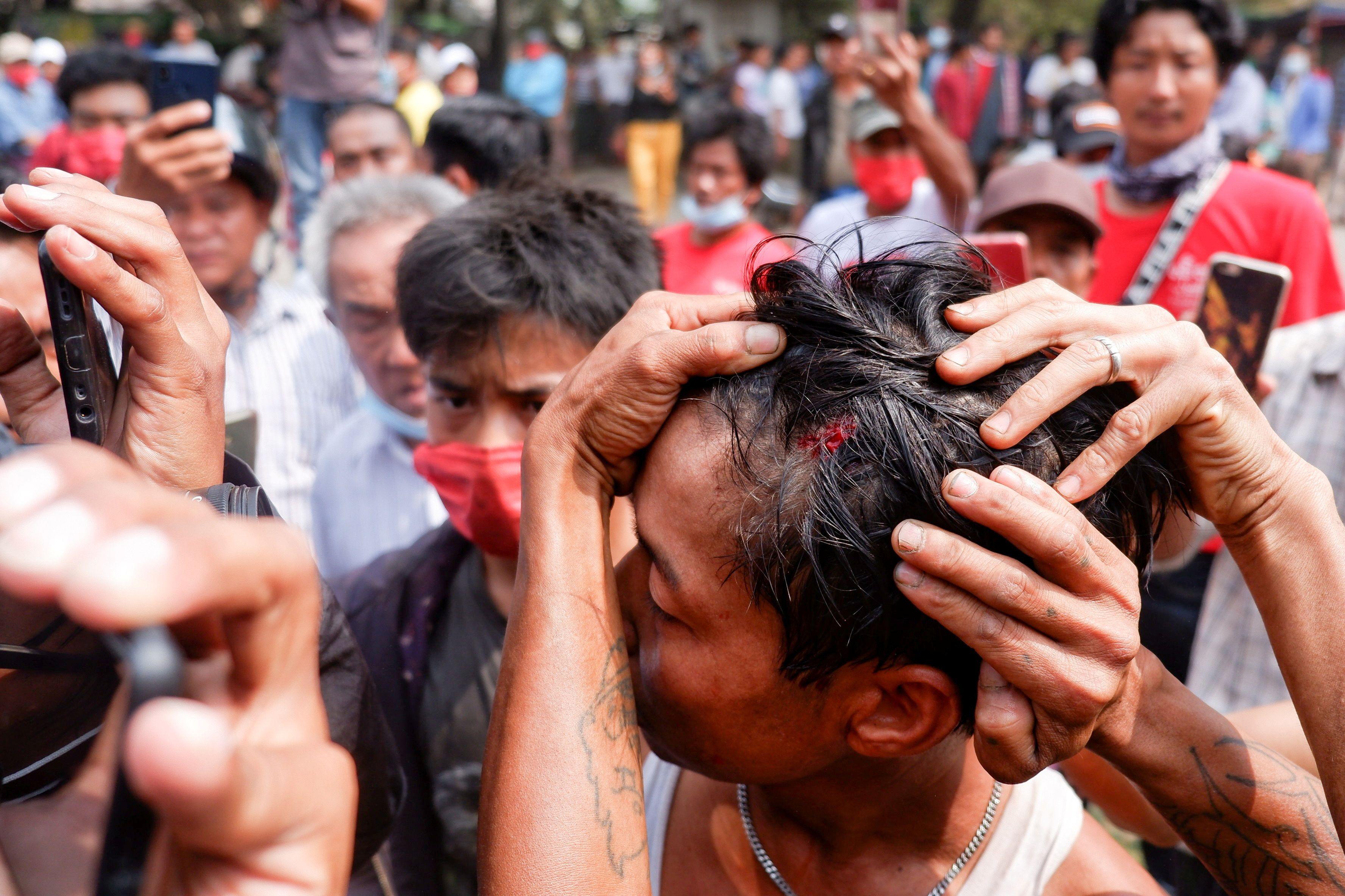 Un hombre muestra una herida después de que la policía disparara balas de goma durante las protestas contra el golpe militar, en Mandalay, Myanmar, el 20 de febrero de 2021. REUTERS / Stringer