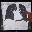 El doctor belga Ignace Demeyer, presidente del Departamento de Medicina de Emergencia del Hospital Onze Lieve Vrouw, señala una imagen del escáner de los pulmones de un paciente con buena salud (exploración tomada el 16 de marzo de 2020) en Aalst, Bélgica (Reuters)