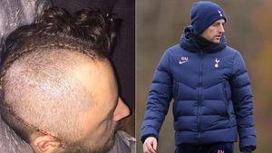 """""""Tengo 14 placas de metal y 28 tornillos en mi cráneo"""": la dramática historia del entrenador que reemplazará a Mourinho en Tottenham"""