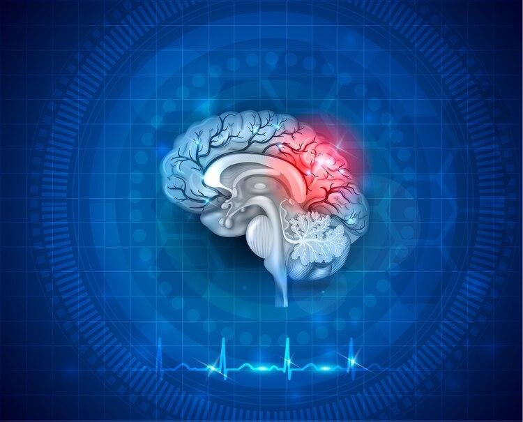 La atención temprana del ACV puede reducir al mínimo el daño cerebral y la posibilidad de muerte y discapacidad (Shutterstock)