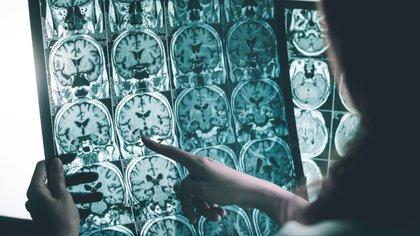 El trabajo comparó los niveles de la lactoferrina salival con la carga cerebral de beta-amiloide e dos grupos de pacientes, en los que se han incluido a pacientes con diferentes trastornos neurodegenerativos.   (Shutterstock.com)