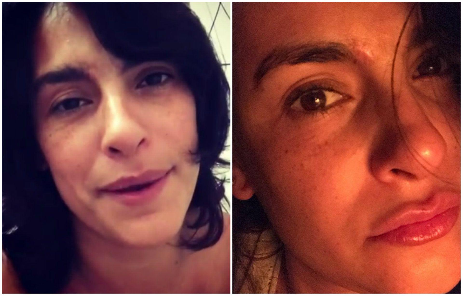Liz Gallardo dice que las marcas en sus cejas aún son evidentes (Instagram)