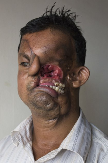 Hashmot Ali, sin la máscara que fue su compañera durante 22 duros años (Getty Images)