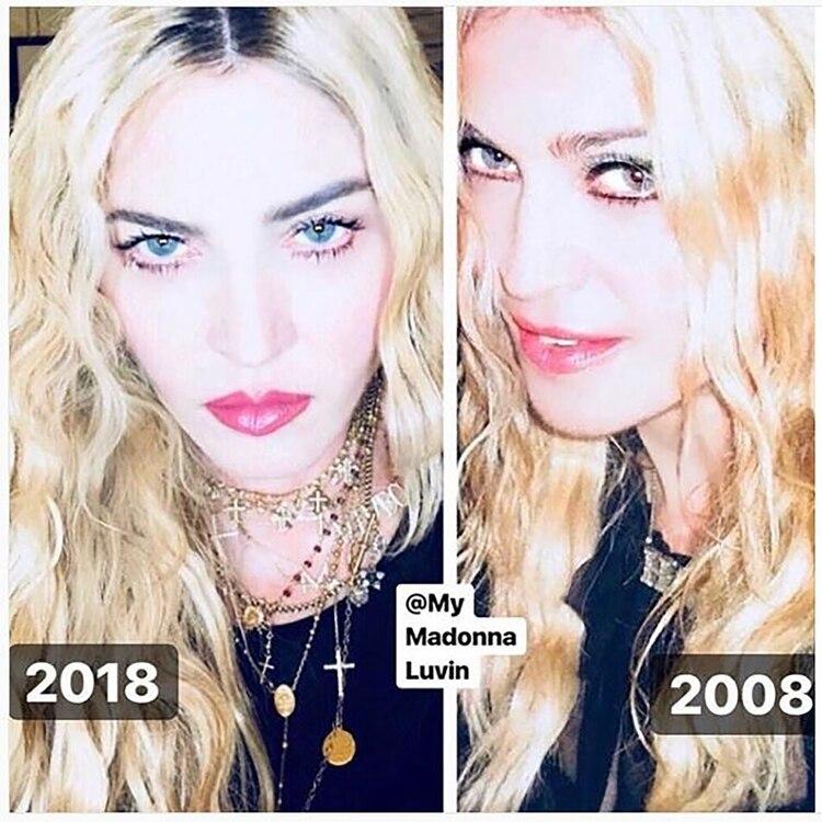 Madonna #10yearchallenge-(Instagram: Madonna)
