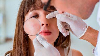 El dermatólogo determinará el tipo de acné e indicará el tratamiento para cada caso (Shutterstock)