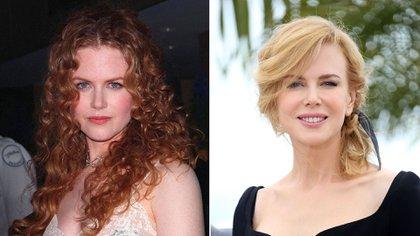 Nicole Kidman no podía mover su cara por el botox