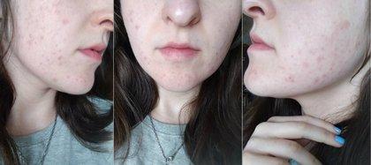La joven de 20 años preguntó a los usuarios si consideraban que cubrir su acné era una forma de engañar a alguien y ser motivo para cortar una relación tras salir con un muchacho que dio esa razón tras salir en seis ocasiones Foto: Reddit