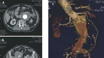 Un aneurisma de aorta abdominal visto en computadora