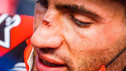 3) Herido y con lágrimas. Quebrado por la emoción del triunfo (Prensa Dakar).