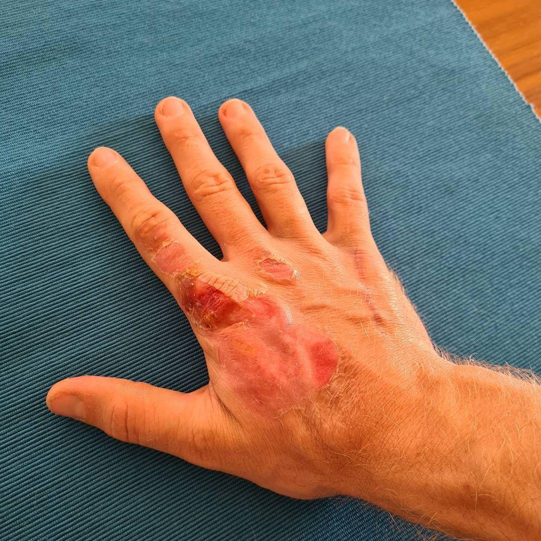 Las manos de Grosejan tras el accidente en la formula 1