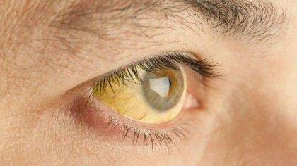 Los signos de un cuadro avanzado de hepatitis pueden ser muchos