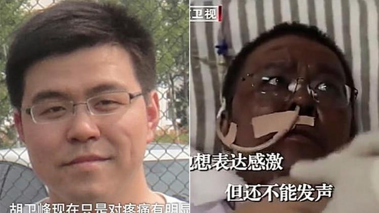 El antes y el después del Dr. Hu Weifeng
