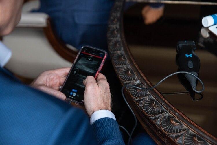 El ecógrafo Butterfly cuenta con una sonda que se conecta a un smartphone y permite ver y mandar las imágenes escaneadas a cualquier lugar del mundo