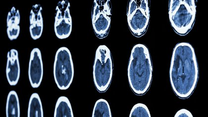 El tratamiento varía según el tipo de ataque cerebral, edad, estado de salud y el tiempo transcurrido
