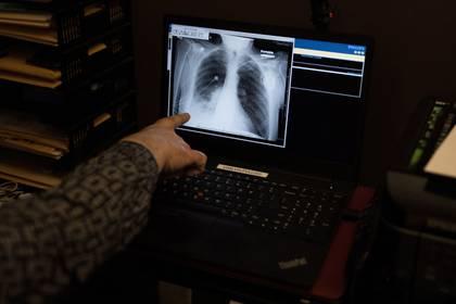 Además de afectar los pulmones, el COVID-19 daña los riñones, acelera el sistema inmunológico de manera catastrófica y puede causar coágulos que impiden la circulación de la sangre a los pulmones, el corazón o el cerebro. (REUTERS/Megan Jelinger)