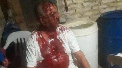 Horacio López terminó con la remera llena de sangre tras el ataque y robo