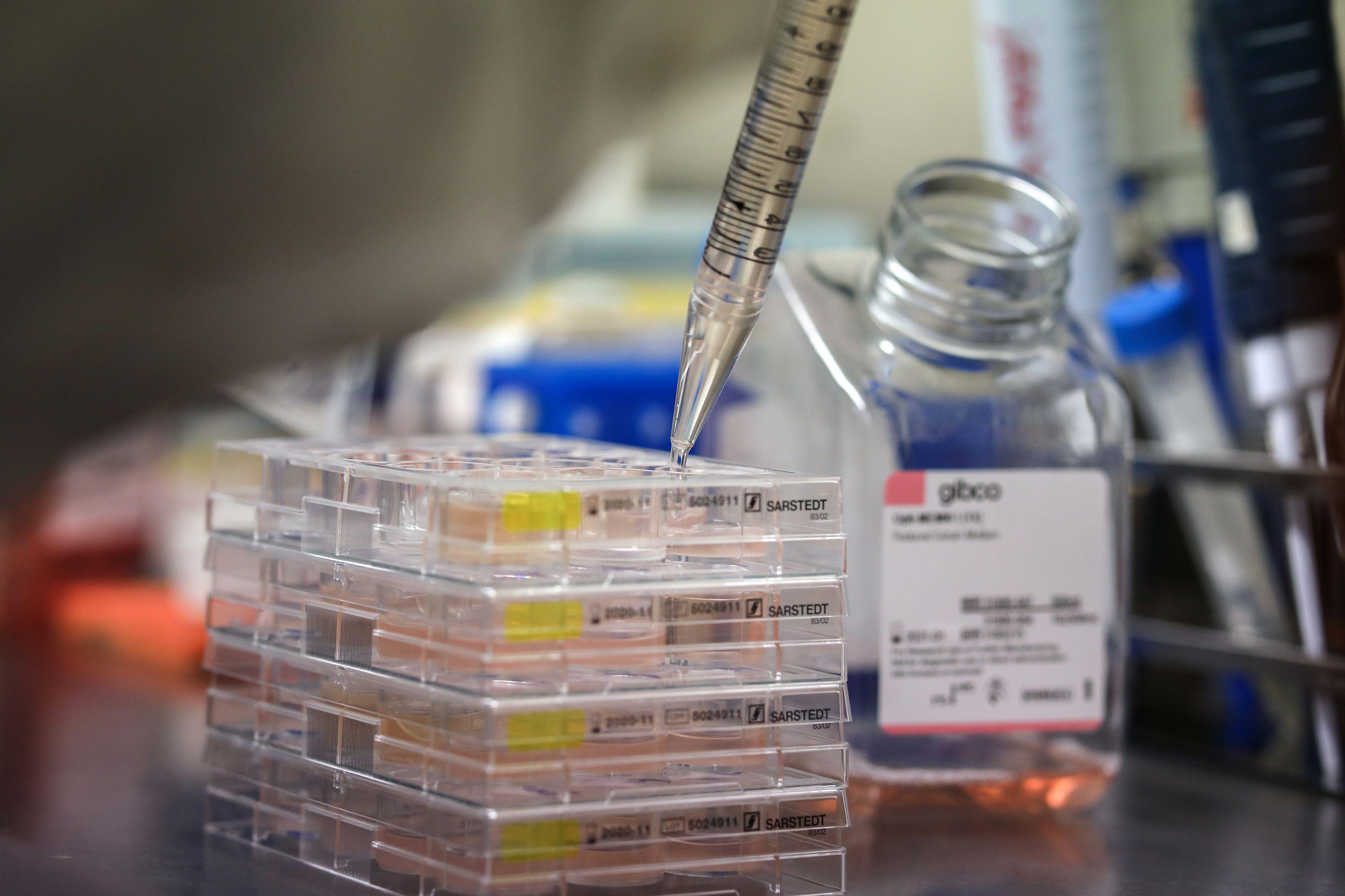 Todos los pacientes tenían infiltrado de células T en el espacio intersticial. En todos se observaron neutrófilos en los espacios intersticiales y tapones de neutrófilos en los capilares (REUTERS)