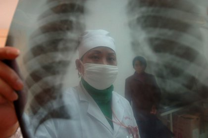 Las enfermedades poco frecuentes (EPOF) en su conjunto son más de 7 mil (EFE/Shou Sheng/Archivo)