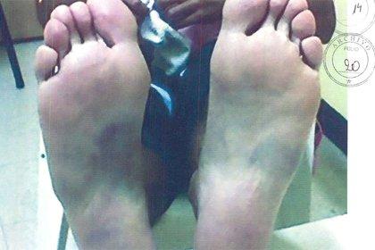 """Las plantas de los los pies de Mendoza después de la tortura del """"pata-pata"""""""
