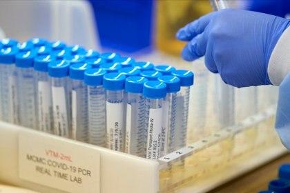 En la actualidad hay más de 136 desarrollos de vacunas en todo el mundo - REUTERS/Cooper Neill